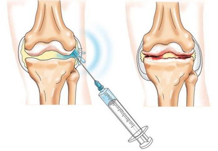 plasmoliferarea artrozei genunchiului)