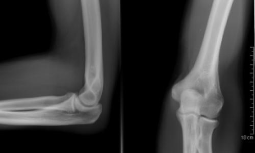 osteopathia artrosis kezelése